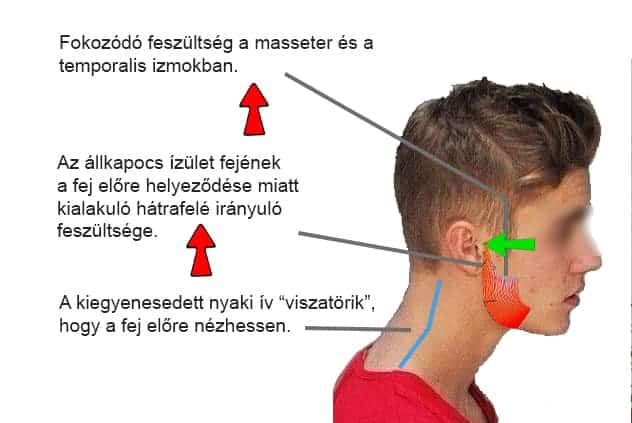 Nyak fáj a látás romlott Lyme-betegek információs oldala